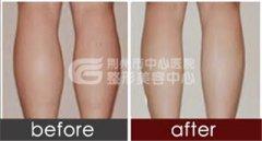 小腿吸脂手术能维持多久