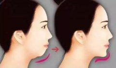 隆下巴手术后应该注意什
