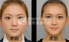 荆州注射瘦脸针的价格是