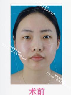 沙市真人双眼皮手术分享,看完我马上想去割了