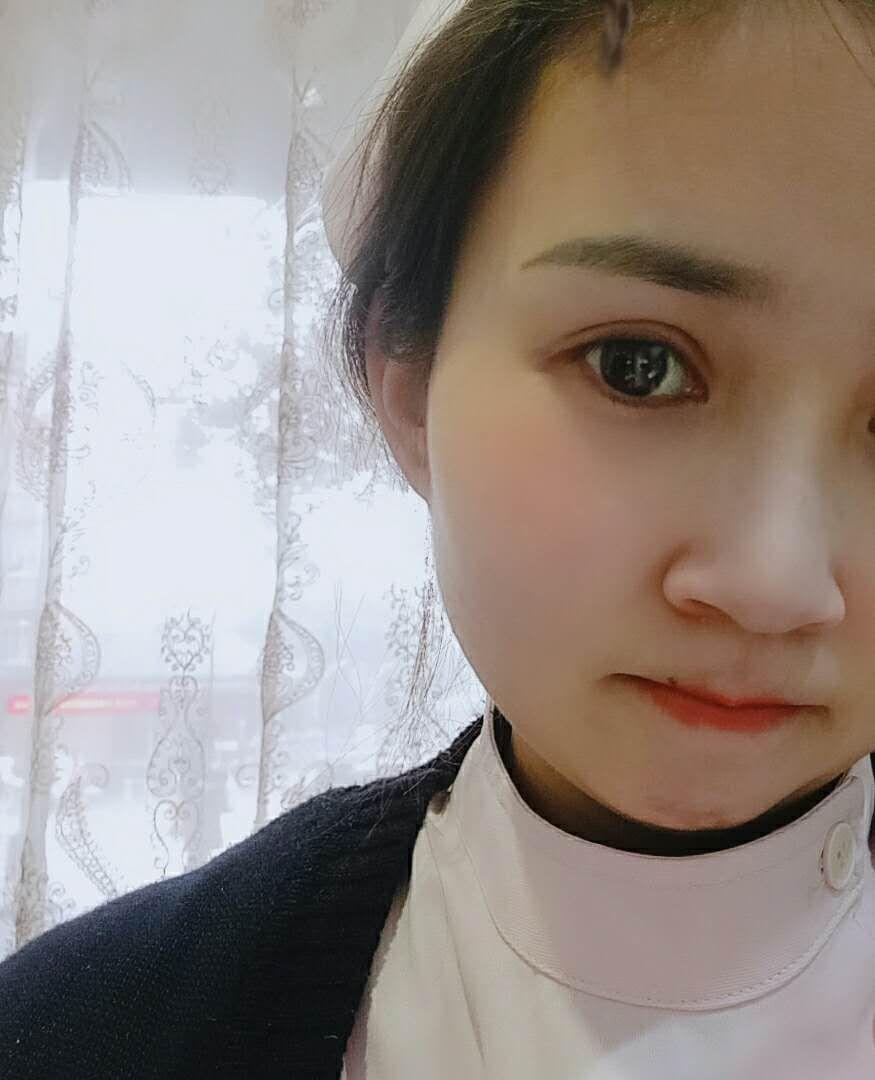 揭秘荆州医院董洁给我做双眼皮手术全过程 附前后对比图