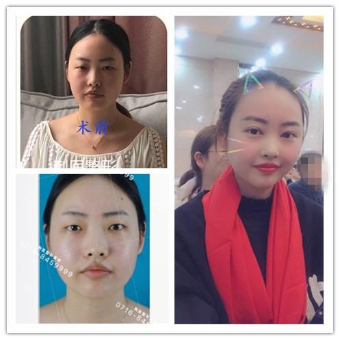 分享荆州董洁做的7毫米平行双眼皮+开眼角真人案例