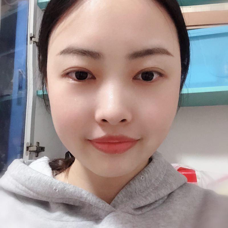分享荆州医院田方兴给我做双眼皮后的80天效果对比图