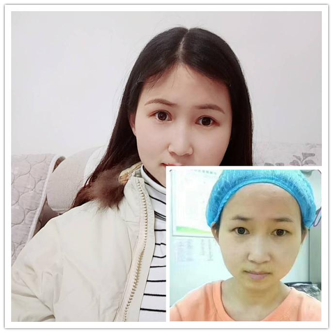 分享荆州护士做切开双眼皮7天恢复过程 附对比图