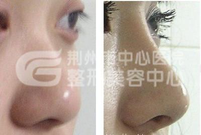 假体隆鼻的效果如何确保