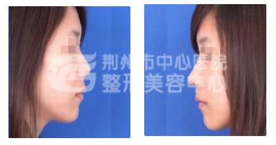 假体隆鼻手术后多久能消肿