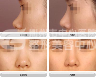 假体隆鼻可以保持多久?