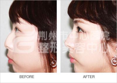 假体隆鼻手术后护理有哪些呢