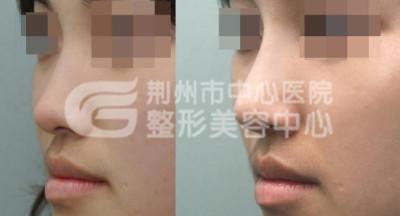 假体隆鼻让鼻子更自然美观