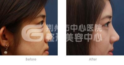 假体隆鼻手术后的注意事项
