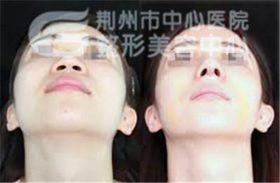 鼻孔缩小方法有那些呢?