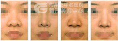 荆州鼻孔缩小要多少钱