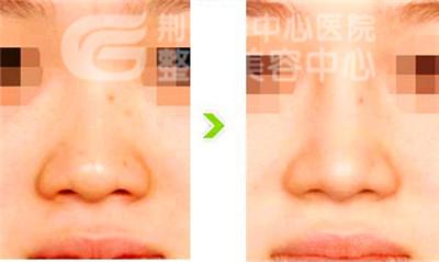 荆州鼻孔缩小手术费用多少