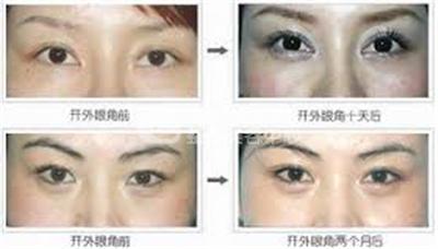 整形开眼角手术效果怎么样