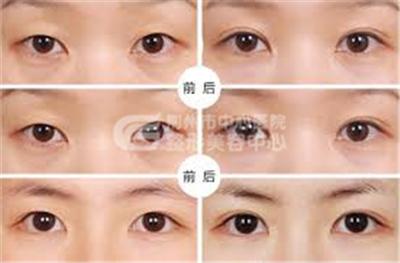 开眼角手术是无痕的吗