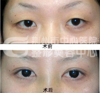 做开眼角手术会留下疤痕么?