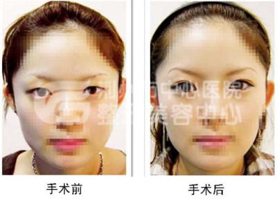荆州开眼角手术的费用是多少?
