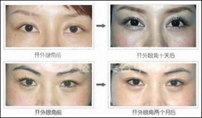 开眼角手术,打造独特眼部魅力