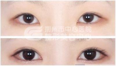 开眼角对眼睛有伤害吗?
