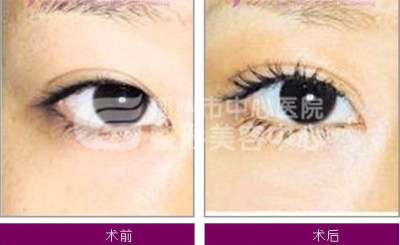 开眼角手术多久才能恢复?