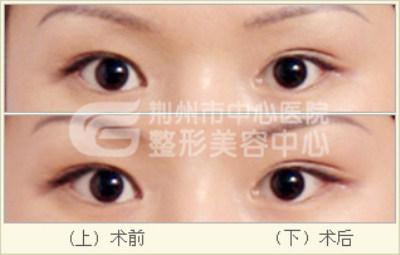 开眼角手术多久可以恢复?