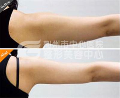 手臂吸脂手术的优势有哪些