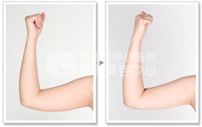手臂吸脂术需要多久才能恢复呢?