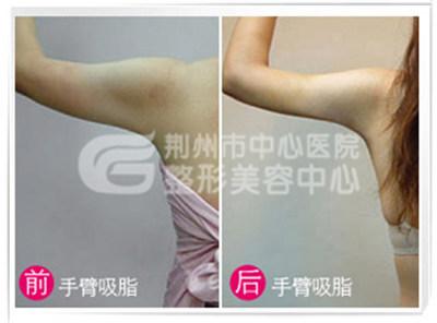 手臂吸脂原理及过程是怎样的?