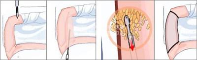 手臂吸脂术后注意什么呢