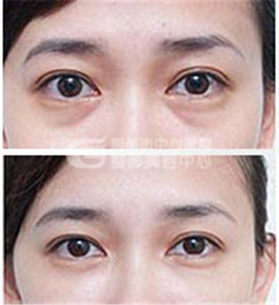 提眉术的适应症有哪些?