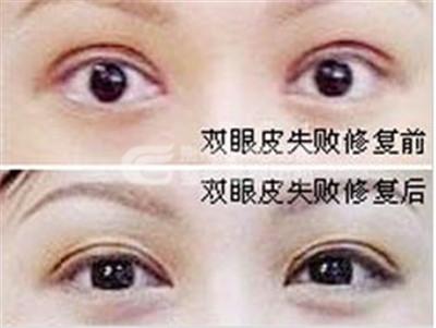 双眼皮失败怎么修复