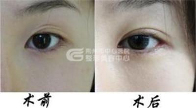 割双眼皮失败要如何修复呢?