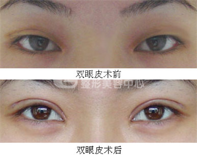 哪些情况需要做埋线双眼皮修复手术?