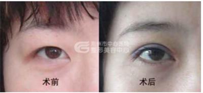 双眼皮修复的方法有那些呢?