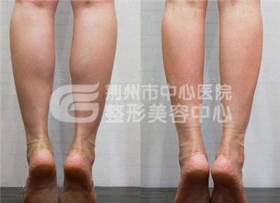 小腿吸脂手术的效果好吗?