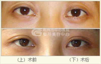 双眼皮修复手术的效果