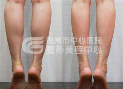 小腿吸脂手术后该如何护理