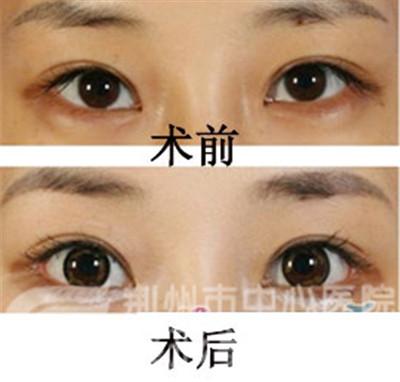 荆州中老年人可以割双眼皮吗?