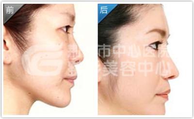 硅胶隆鼻应该注意什么?