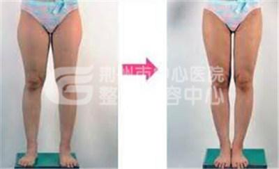 大腿吸脂手术后需要注意什么事项呢?