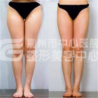 大腿吸脂减肥优势有哪些