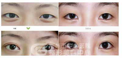 埋线双眼皮手术效果好吗?