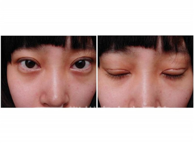 双眼皮手术的常见方法有哪些