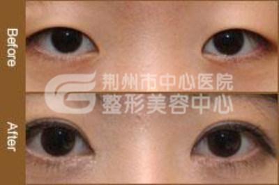 荆州中心医院开外眼角术的优势