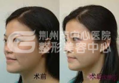 荆州权威整形医院鼻整形术攻略