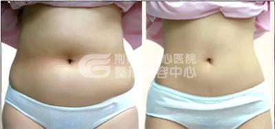 腰腹部吸脂 你的瘦身小秘密