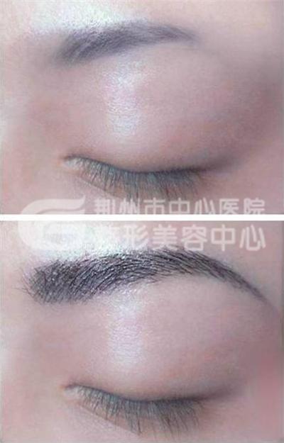 荆州整形眉毛种植常用的手术方法?
