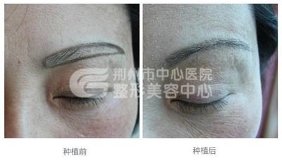 眉毛种植术后有哪些方面是需要注意的?