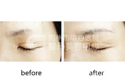 眉毛种植后的护理怎么做?