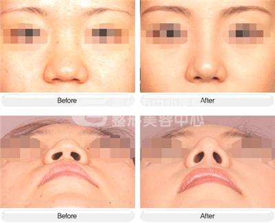 鼻头缩小手术 体验美容神奇